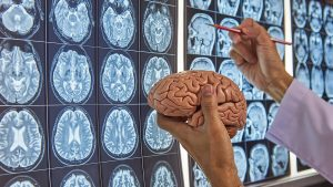 جراح مغز و اعصاب شیراز