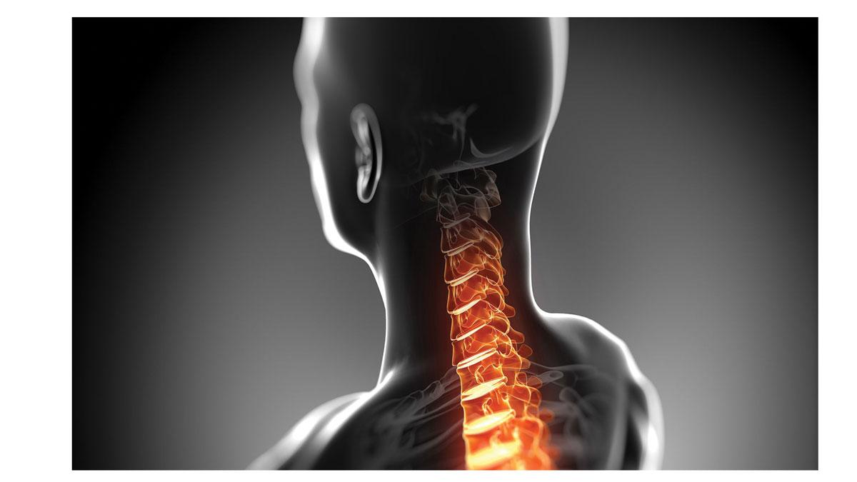 لیست متخصص دیسک گردن