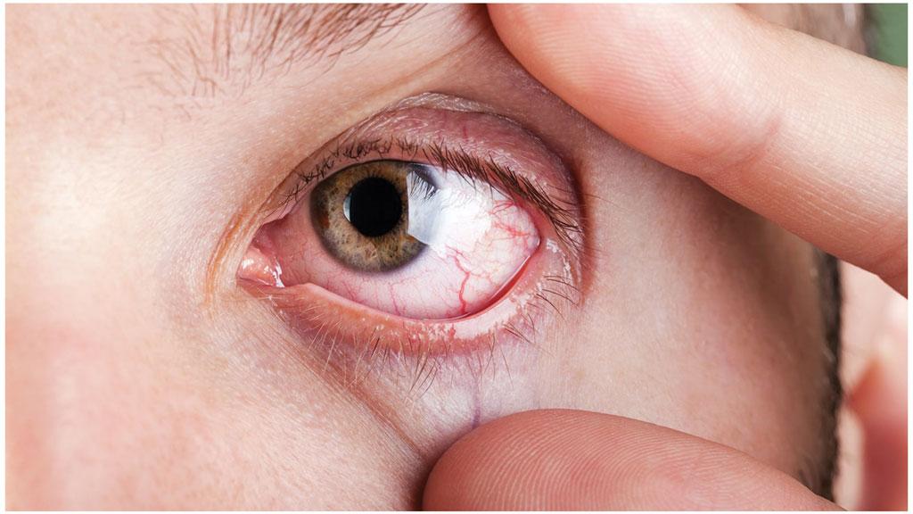 التهاب قرنیه چشم چیست و چگونه درمان میشود؟