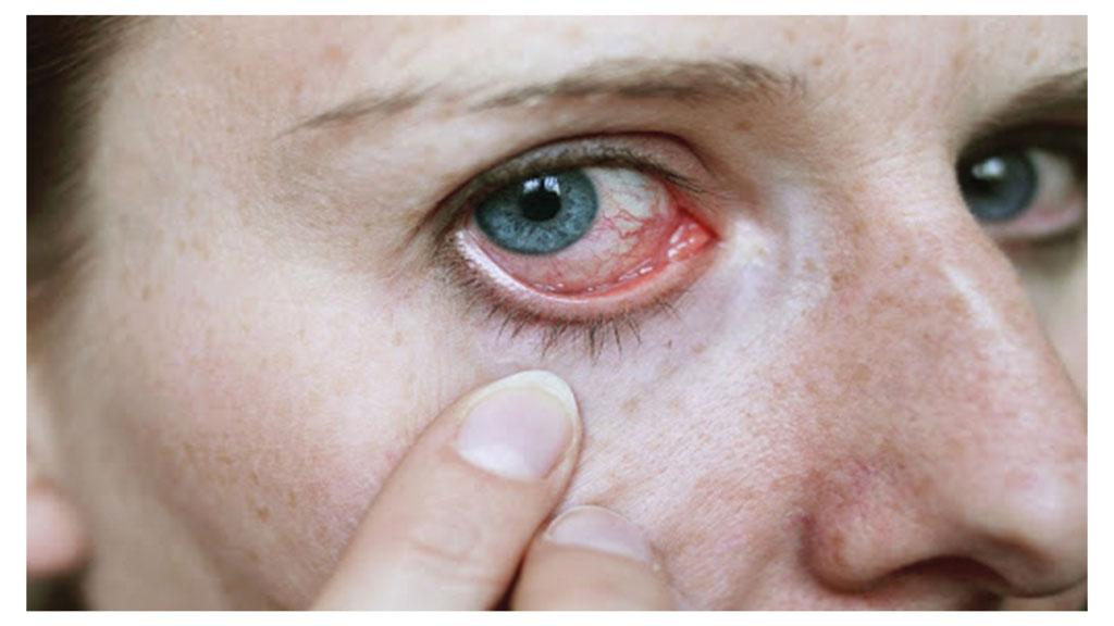 آشنایی با بیماری های شبکیه چشم